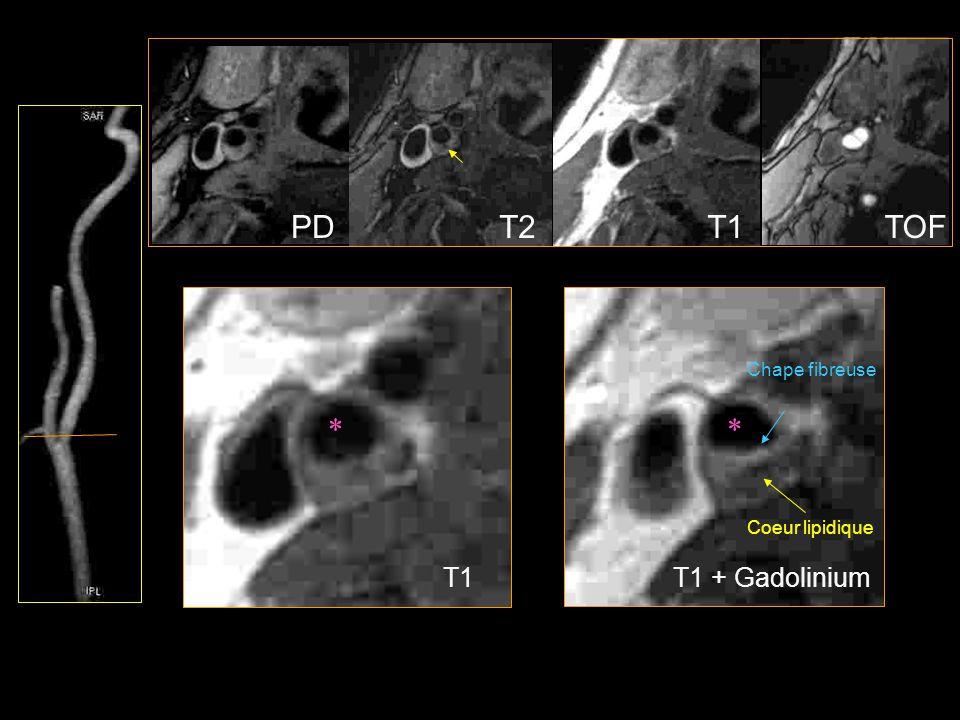 PDT1T2TOF T1T1 + Gadolinium ** Chape fibreuse Coeur lipidique