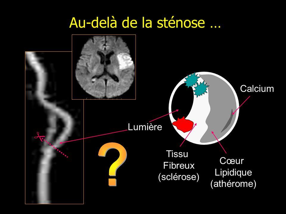 Touzé et al. 2007 Gauche Droite