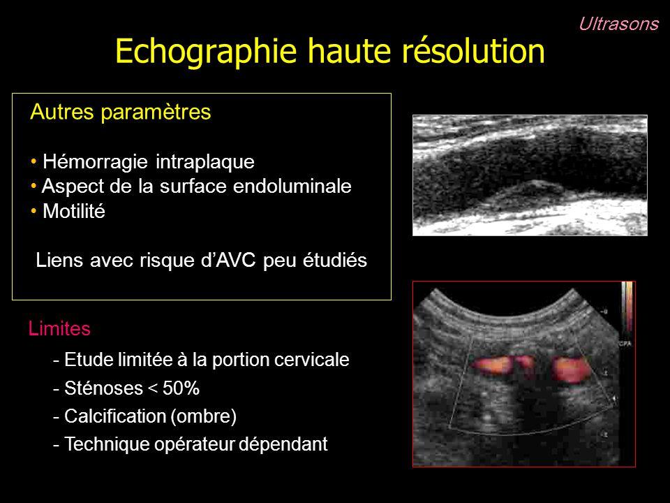 Echographie haute résolution Ultrasons Autres paramètres Hémorragie intraplaque Aspect de la surface endoluminale Motilité Liens avec risque dAVC peu