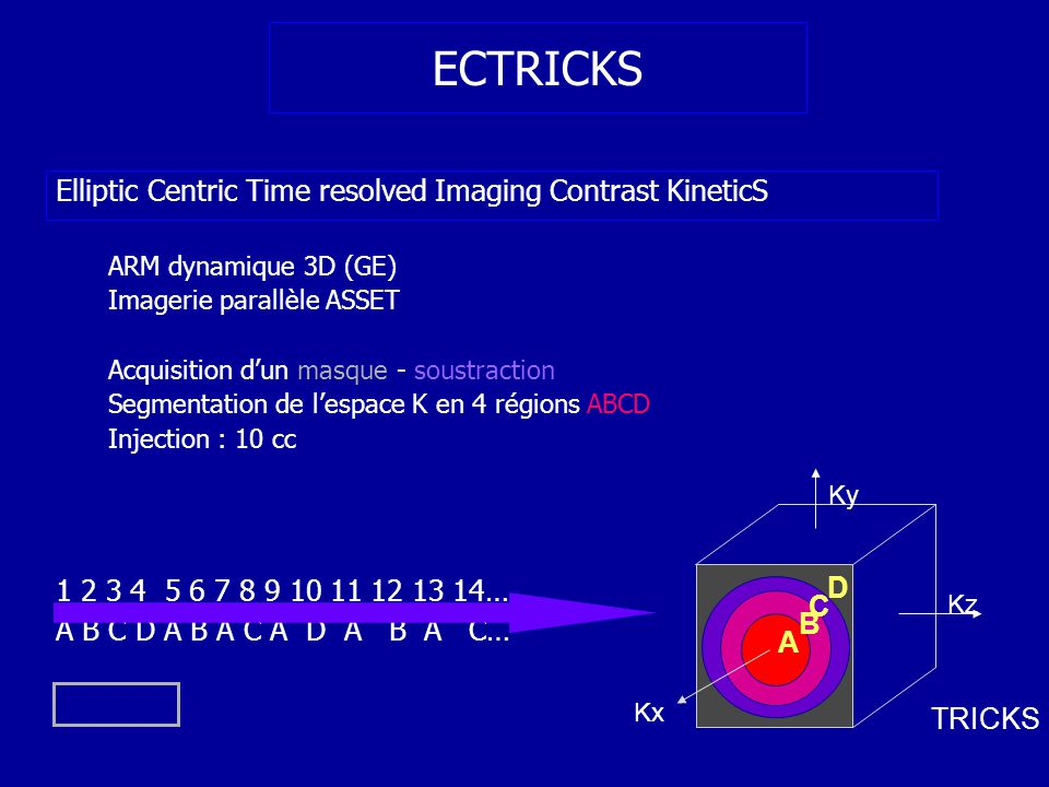 64 ECTRICKS Elliptic Centric Time resolved Imaging Contrast KineticS ARM dynamique 3D (GE) Imagerie parallèle ASSET Acquisition dun masque - soustraction Segmentation de lespace K en 4 régions ABCD Injection : 10 cc 1 2 3 4 5 6 7 8 9 10 11 12 13 14… A B C D A B A C A D A B A C… A B C D Kz Ky Kx TRICKS