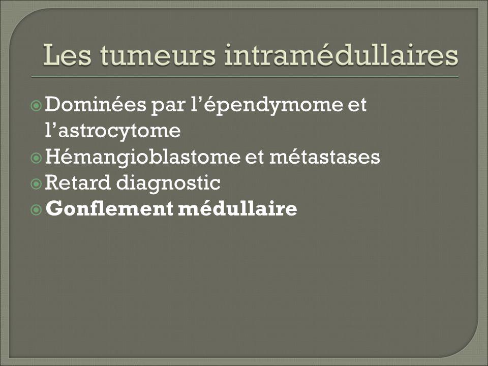 Dominées par lépendymome et lastrocytome Hémangioblastome et métastases Retard diagnostic Gonflement médullaire