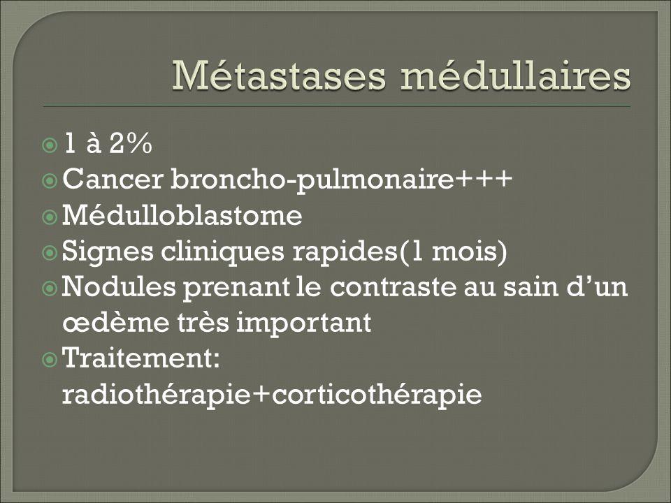 1 à 2% Cancer broncho-pulmonaire+++ Médulloblastome Signes cliniques rapides(1 mois) Nodules prenant le contraste au sain dun œdème très important Traitement: radiothérapie+corticothérapie