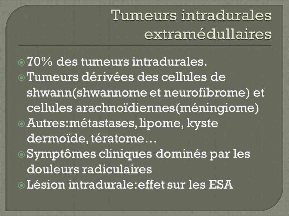 70% des tumeurs intradurales.