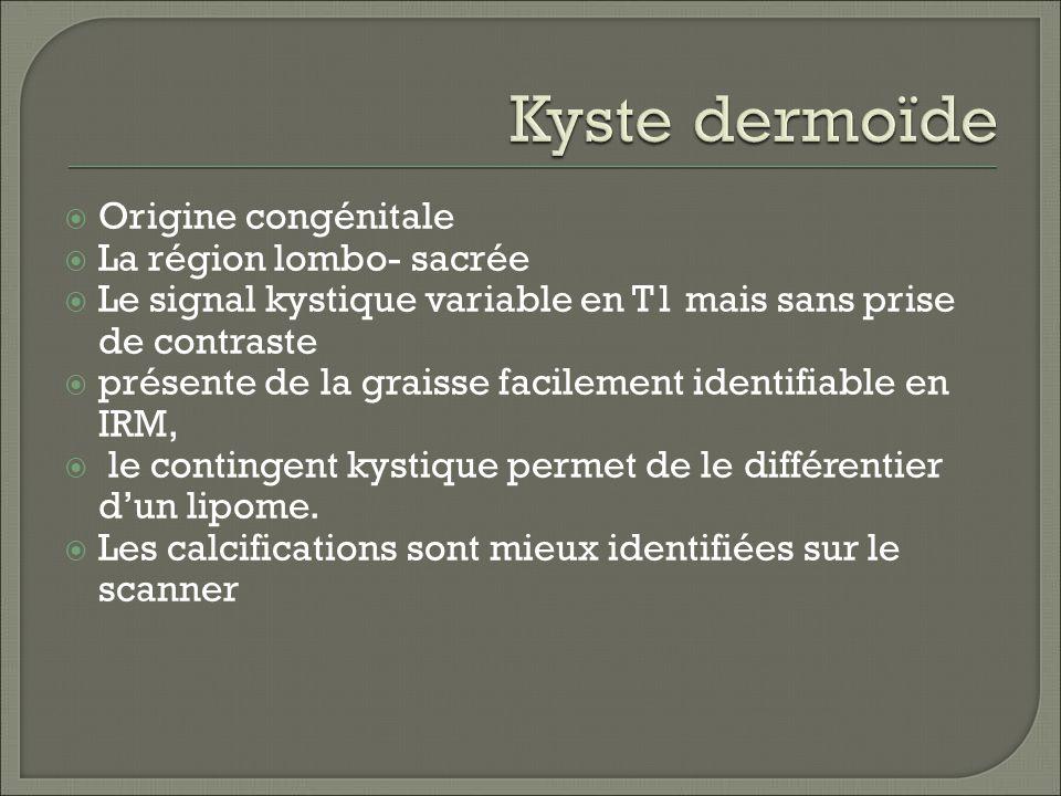 Origine congénitale La région lombo- sacrée Le signal kystique variable en T1 mais sans prise de contraste présente de la graisse facilement identifiable en IRM, le contingent kystique permet de le différentier dun lipome.
