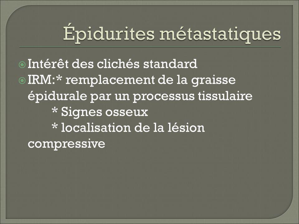 Intérêt des clichés standard IRM:* remplacement de la graisse épidurale par un processus tissulaire * Signes osseux * localisation de la lésion compressive