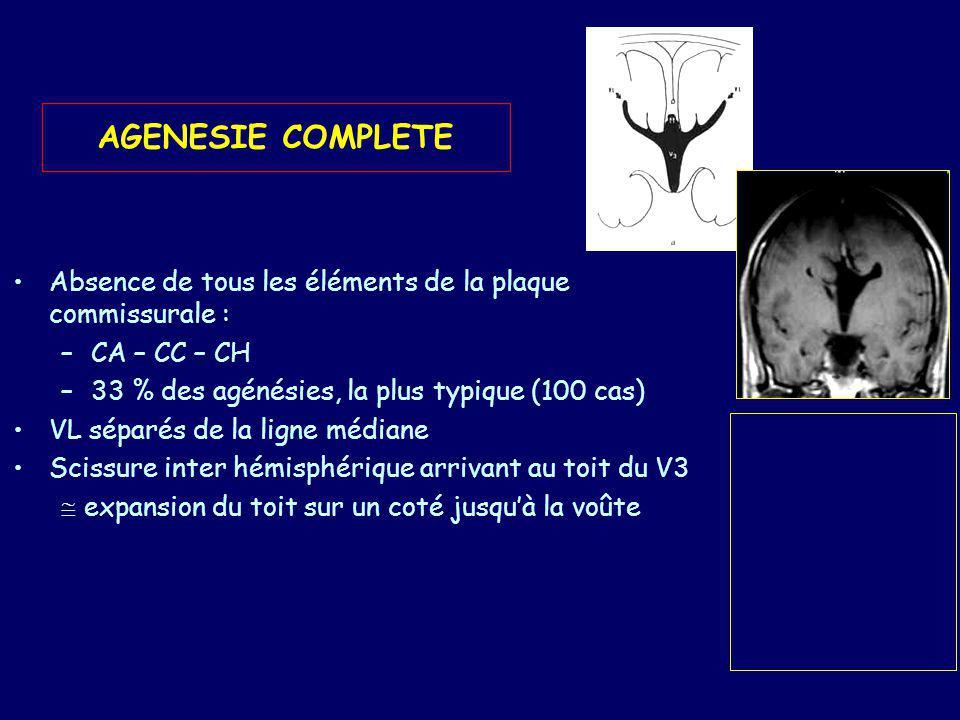 Absence de gyrus cingulaire : sillons à trajet radiaire vers la paroi ventriculaire VL limité en médial par une lame de SB –Niveau thalamique : du cortex septal à la fimbria fornix longitudinal –Plus haut : lame épaissie contenant les fibres calleuses bande de Probst Aspect particulier en cornes de bœuf des VL Empreinte des bandes de Probst sur les VL Aspect particulier des cornes temporales.