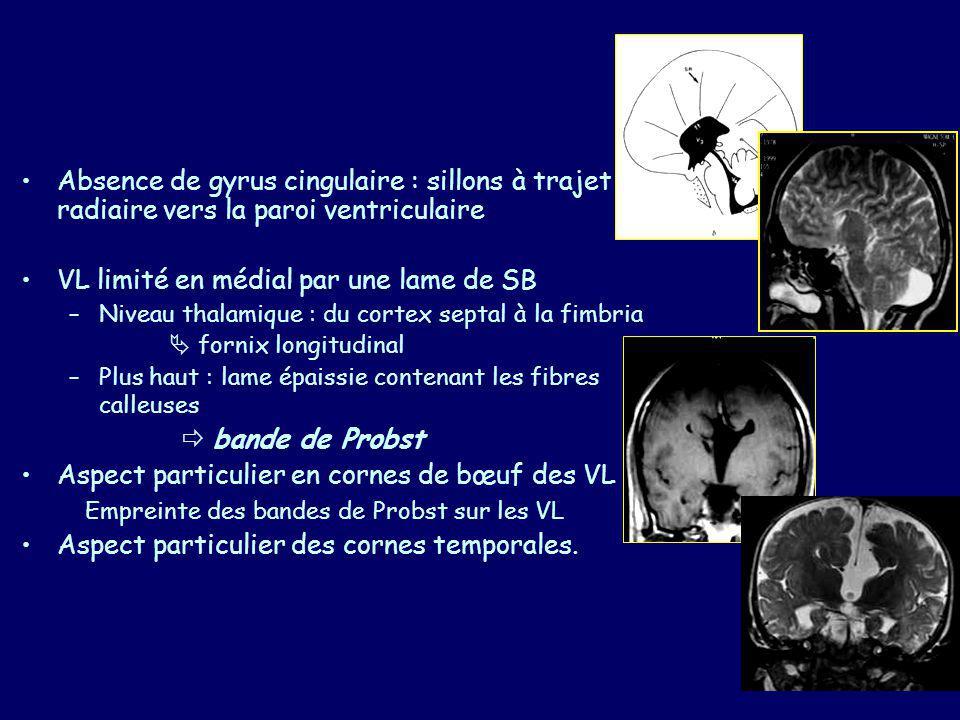 AGENESIE COMPLETE Anomalies associées : –Hétérotopie 5/33 –Cérébelleuse 3/33 : agénésie vermienne, malformation DW –Visuelles 7/33 : Colobome, microphtalmie Nystagmus congénital –Défects facial et crâniens 8/33 : Fente labiale Encéphalocéle –Autres : hypophyse (2), rachis (2), cœur (2), extrémités (2) –Clinique : épilepsie et RPM 18/33, 2N uniquement.