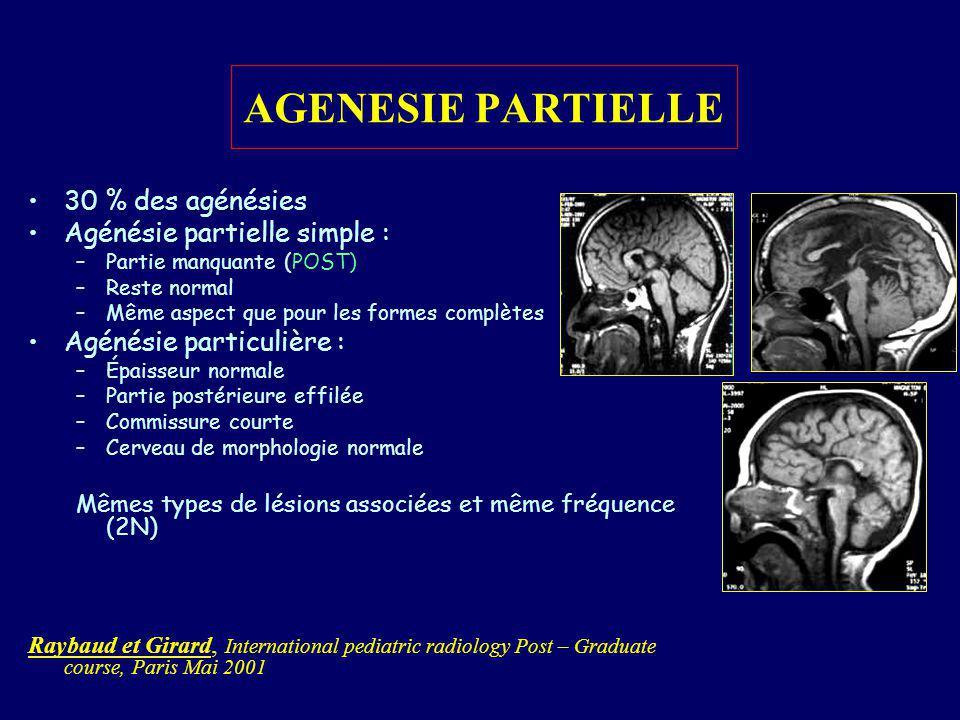 FORMES KYSTIQUES Forme habituelle : –ESA normaux –Maximum : expansion dorsale du toit du V3 Formes kystiques : –13 % Kystes non communiquant avec les ventricules souvent multi- loculaires –CA présente, le reste manquant totalement ou en partie –Aspect du cerveau difficile à analyser de part la distorsion crée par le kyste –Cortex bordant le kyste est dysplasique – hétérotopie fréquente Clinique : macrocéphalie isolée, parfois dans un syndrome dAICARDI
