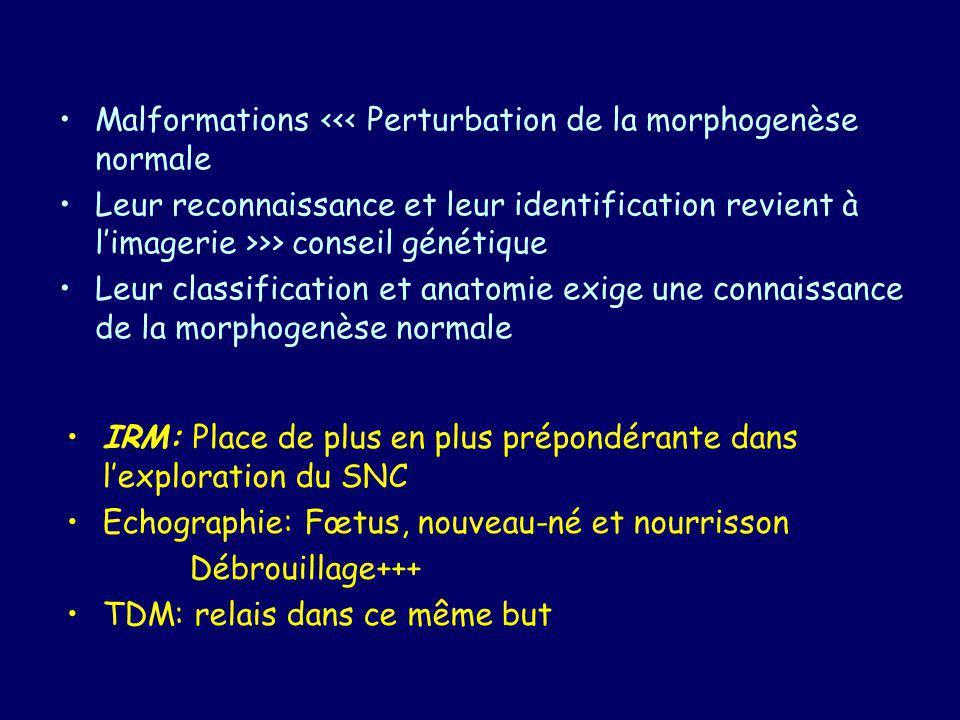 IRM - SEQUENCES T1 de préférence en IR T2 et flair : signal –Problème de limmaturité du cerveau : nouveau né/nourrisson –Attendre la maturité de la SB, SAUF urgence Acquisition 3D –Utile à la reconstruction –Finesse des coupes (1 mm) Injection de PDC : –Évaluation de la vascularisation (secteur veineux) Exploration médullaire : –Anomalies des viscères pelviens TDM utile dans les malformations de la face et de la base du crâne
