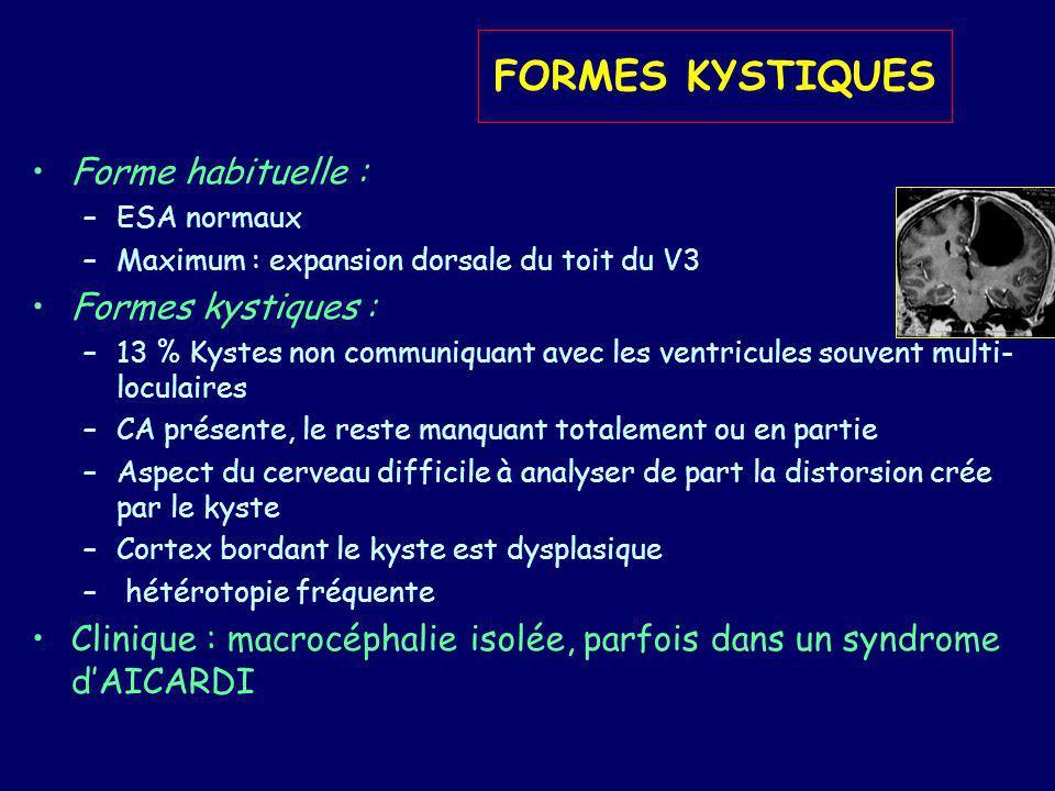 FORMES KYSTIQUES Forme habituelle : –ESA normaux –Maximum : expansion dorsale du toit du V3 Formes kystiques : –13 % Kystes non communiquant avec les