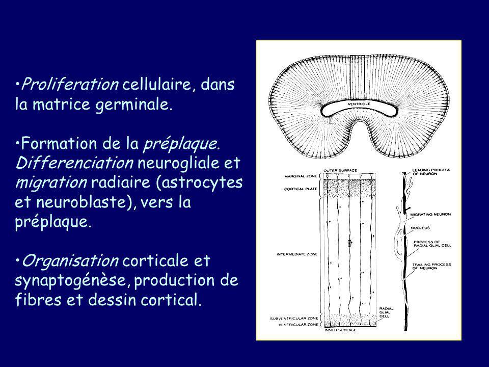 Toute anomalie durant le processus de formation du cortex peut entraîner une MDC Proliferation insuffisante: microlissencephalie.