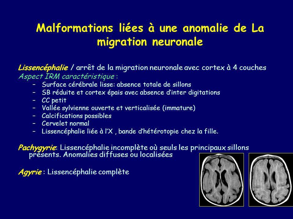 Malformations liées à une anomalie de La migration neuronale Héterotopies Aspects typiques ( différencier de la STB, gliose): –Signal: substance grise.