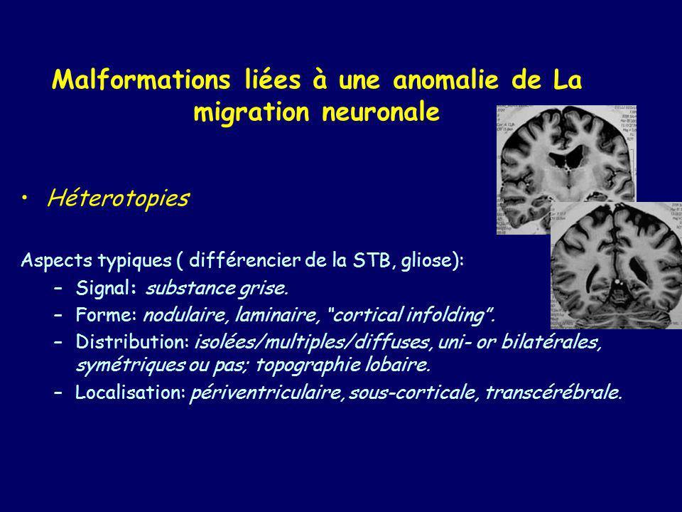 Classification: -nodulaire (dispersées, diffuses) périventriculaires; -nodulaires sous-corticales; -laminaires sous-corticales (en bande); -lissencéphalies (agyrie-pachygyrie).