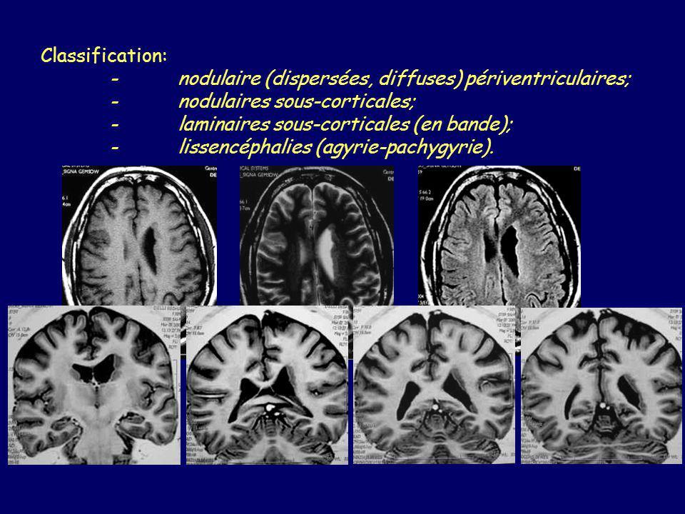 Hétérotopie nodulaire Bilatérales et diffuses: X-linked, lethal chez le mâle (FLN1). Cortex réduit.