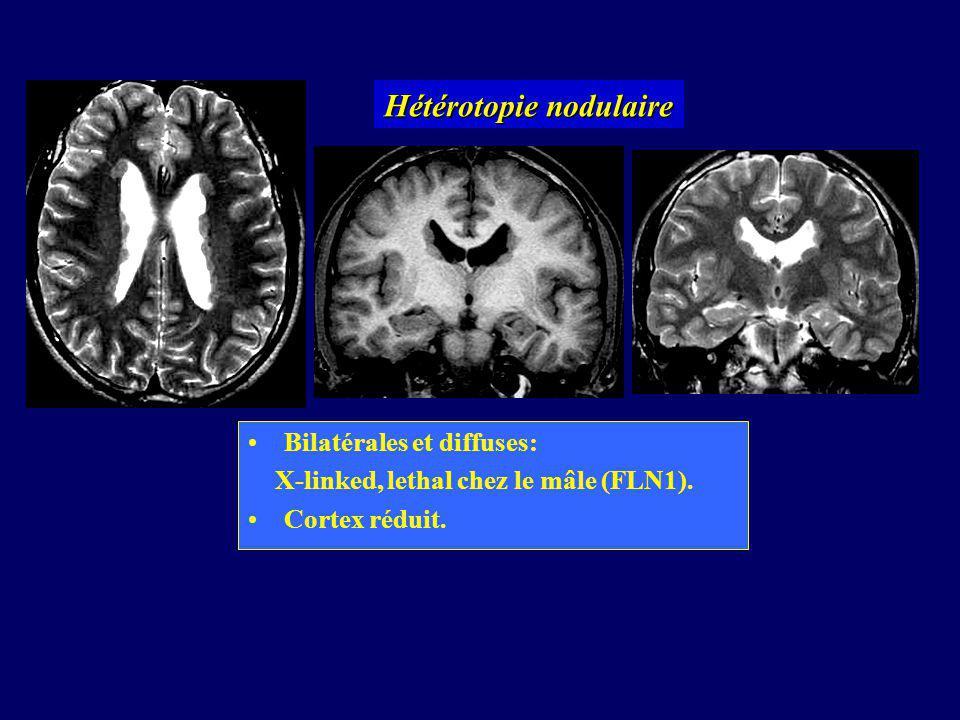 Hétérotopies nodulaires sous-corticales Volumineux amas de SG Continus avec le cortex, Ventricule localement dilaté Substance blanche et LCR mêlés.