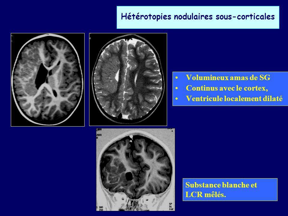 MAUVAISE DIFFERENTIATION NEURO-GLIALE Dysplasie corticale focale (DCF) –Épilepsie focale sévère –Désorganisation de lachitecture corticale avec cytomégalie des neurones et des cellules gliales: Balloon cells –Touche cortex et SB sous corticale avec limite floue avec cortex adjacent.