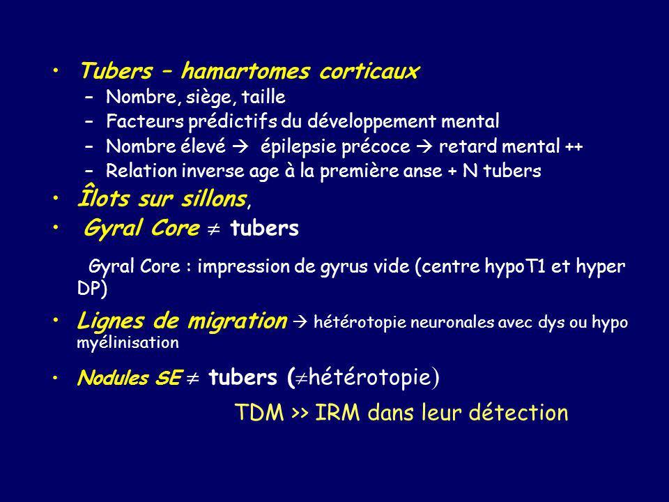 Hémi-mégalencéphalies Étiologies et aspects très variés.