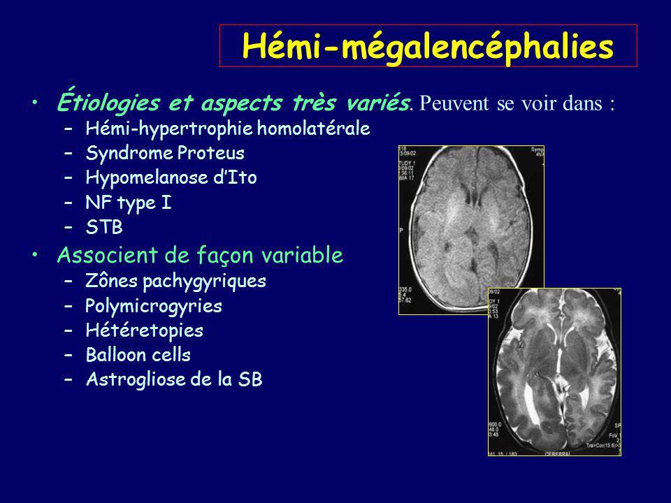 Hémimegalencéphalie aspects en IRM Diagnostic facile en IRM –Ventricule homolatéral large, à cornes étirées –Cortex épais à gyrus larges et sillons courts –Jonction SB – SG floue –Souvent hypersignal de la SB
