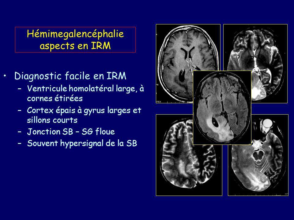 Syndrome Walker-Warburg Lissencéphalie type II ou Cobble stone lissencephaly Aspect en apparence lisse du cerveau : ondulations complexes du ruban cortical (cortex verruqueux) masquées par des méninges épaisses.