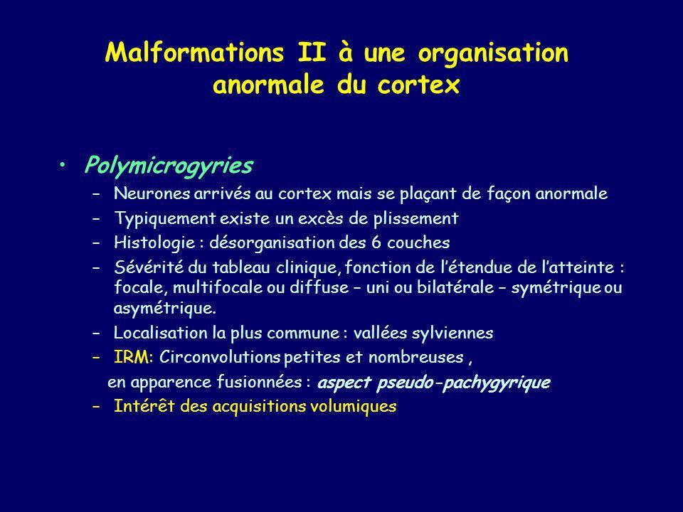 Malformations II à une organisation anormale du cortex Polymicrogyries –Neurones arrivés au cortex mais se plaçant de façon anormale –Typiquement exis