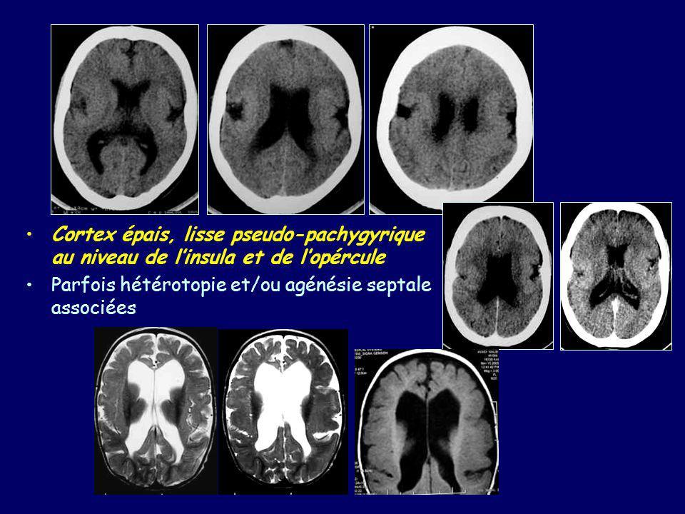 Malformations II à une organisation anormale du cortex Schizencéphalie –Fente couverte de SG : épendyme – couverture piale corticale –Résultat de facteurs génétiques et acquis (agression lors du 2ème trimestre) –Unilatérale ou bilatérale (60 %) –Fente à lèvres fermées ou ouvertes –Fente frontale ou pariétale dans 80 % des cas –Absence de septum pellicidum associée