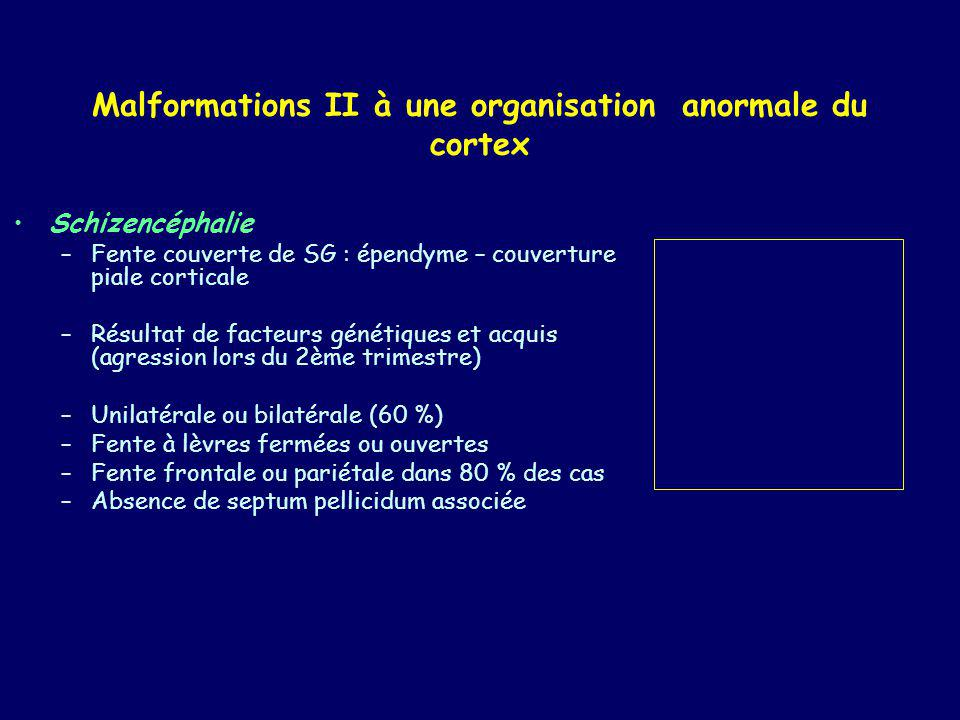 Malformations II à une organisation anormale du cortex Schizencéphalie –Fente couverte de SG : épendyme – couverture piale corticale –Résultat de fact