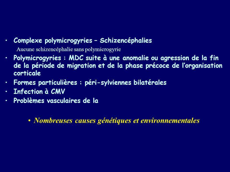 Complexe polymicrogyries – Schizencéphalies Aucune schizencéphalie sans polymicrogyrie Polymicrogyries : MDC suite à une anomalie ou agression de la f