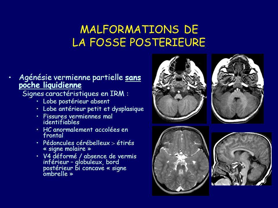 Rhombencephalo-synapsis –Malformation rare –Fusion des HC et absence de vermis –Signes associées : Fusion noyaux dentelés, pédoncules cérébelleux, thalamus Absence de septum pellucidum Anomalies du système limbique Hydrocéphalie –Diagnostic prénatal possible Autres malformations non kystiques Dysplasies : Diffuses avec souvent atteinte sus tentorielle : Walker-Warburg ou lissencephalie type 2 Infection à CMV (tropisme du CMV pour les cellules en prolifération) Focales : Hétérotopis, dysplasie focale, anomalie de la foliation Lhermite- Duclos
