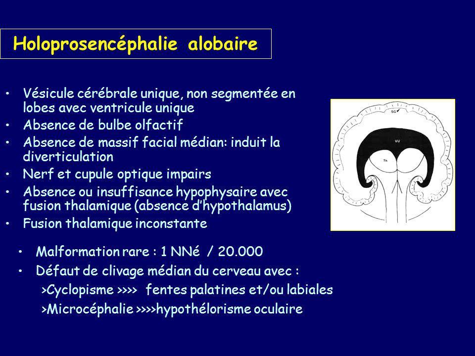 Holoprosencéphalie lobaire Lobes cérébraux bien développés mais sans septum Plancher ventriculaire commun Face normale Forme mineure: Dysplasie septo-optique de De Morsier: atrophie optique, ventricule unique et insuffisance hypophysaire.