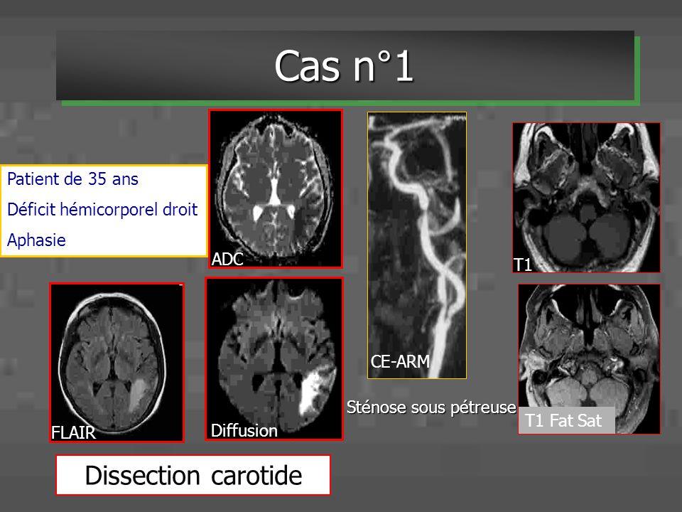 Sténose sous pétreuse Patient de 35 ans Déficit hémicorporel droit Aphasie Cas n°1 Diffusion ADC CE-ARM T1 T1 Fat Sat FLAIR Dissection carotide