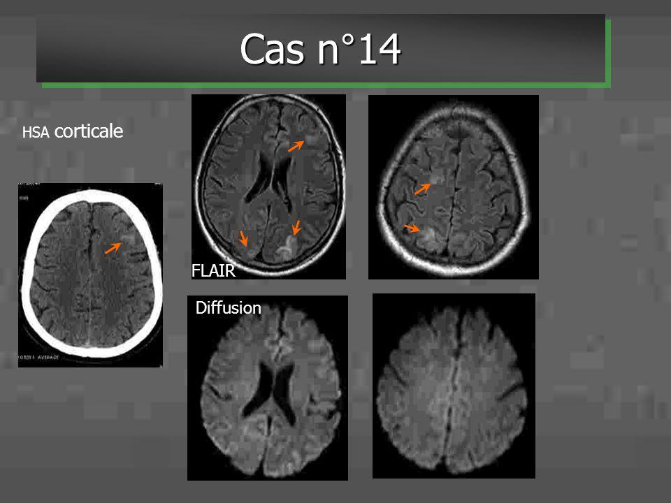 HSA corticale FLAIR Diffusion Cas n°14