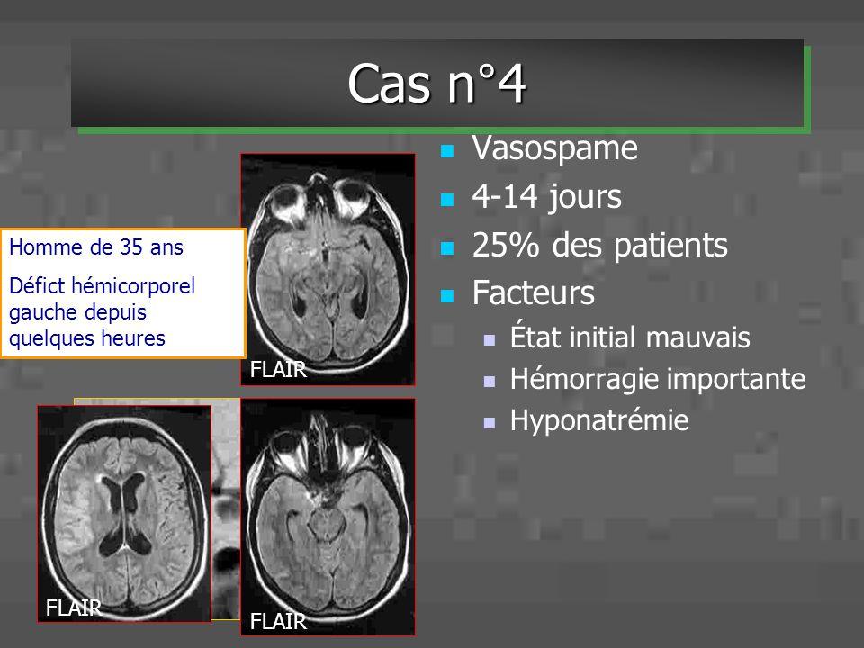 Vasospame 4-14 jours 25% des patients Facteurs État initial mauvais Hémorragie importante Hyponatrémie Homme de 35 ans Défict hémicorporel gauche depu