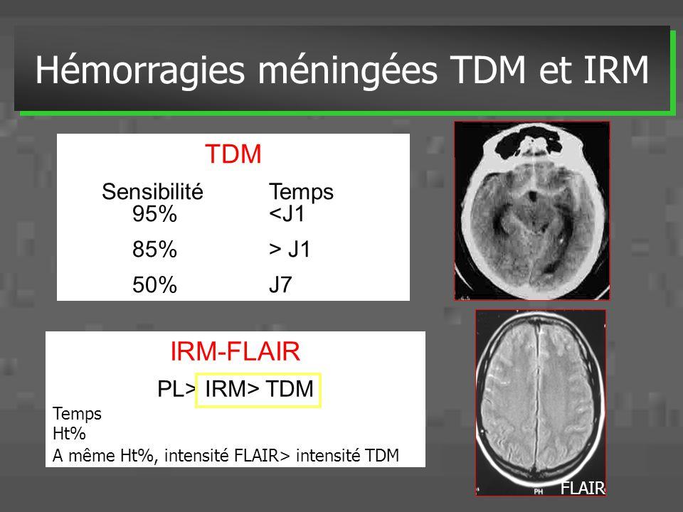 TDM SensibilitéTemps 95%<J1 85% > J1 50% J7 Hémorragies méningées TDM et IRM IRM-FLAIR PL> IRM> TDM Temps Ht% A même Ht%, intensité FLAIR> intensité T