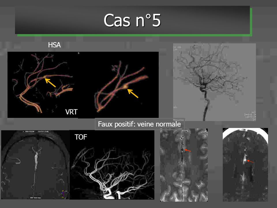 TOF T2 VRT Faux positif: veine normale Angioscanner Cas n°5 HSA