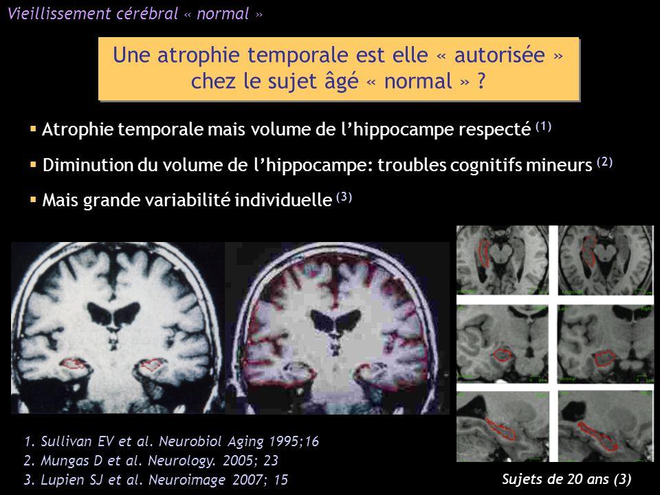 Une atrophie temporale est elle « autorisée » chez le sujet âgé « normal » ? Atrophie temporale mais volume de lhippocampe respecté (1) Diminution du
