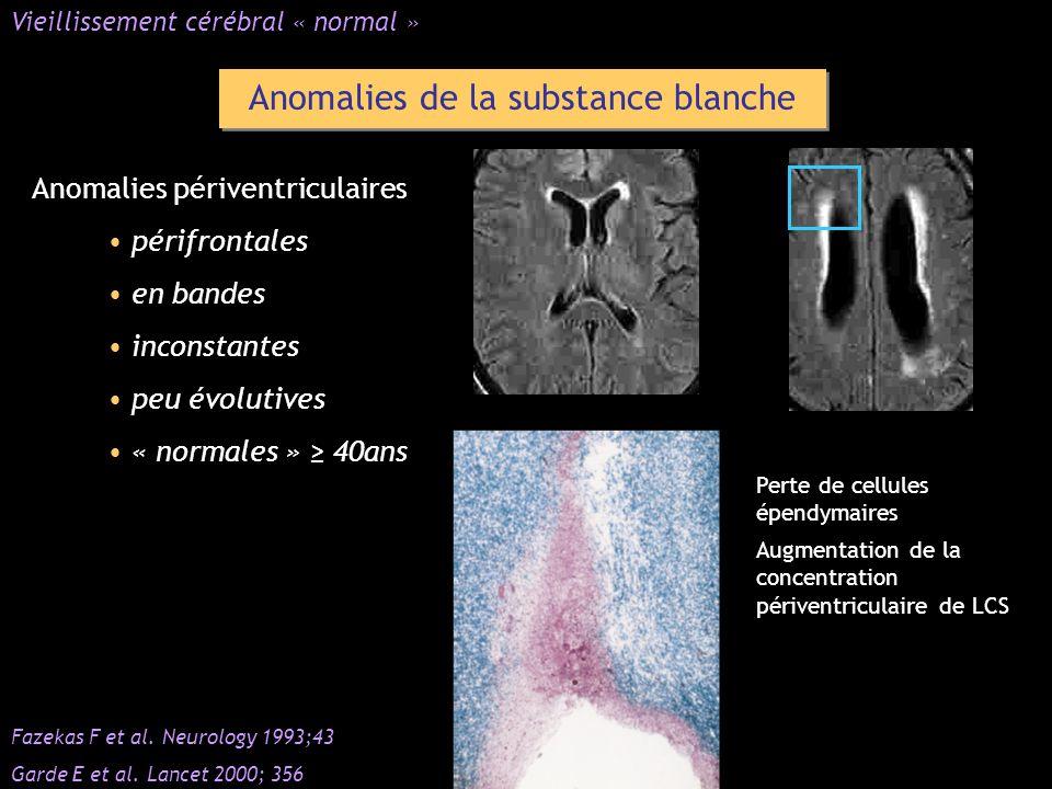 Anomalies de la substance blanche Anomalies périventriculaires périfrontales en bandes inconstantes peu évolutives « normales » 40ans Vieillissement c