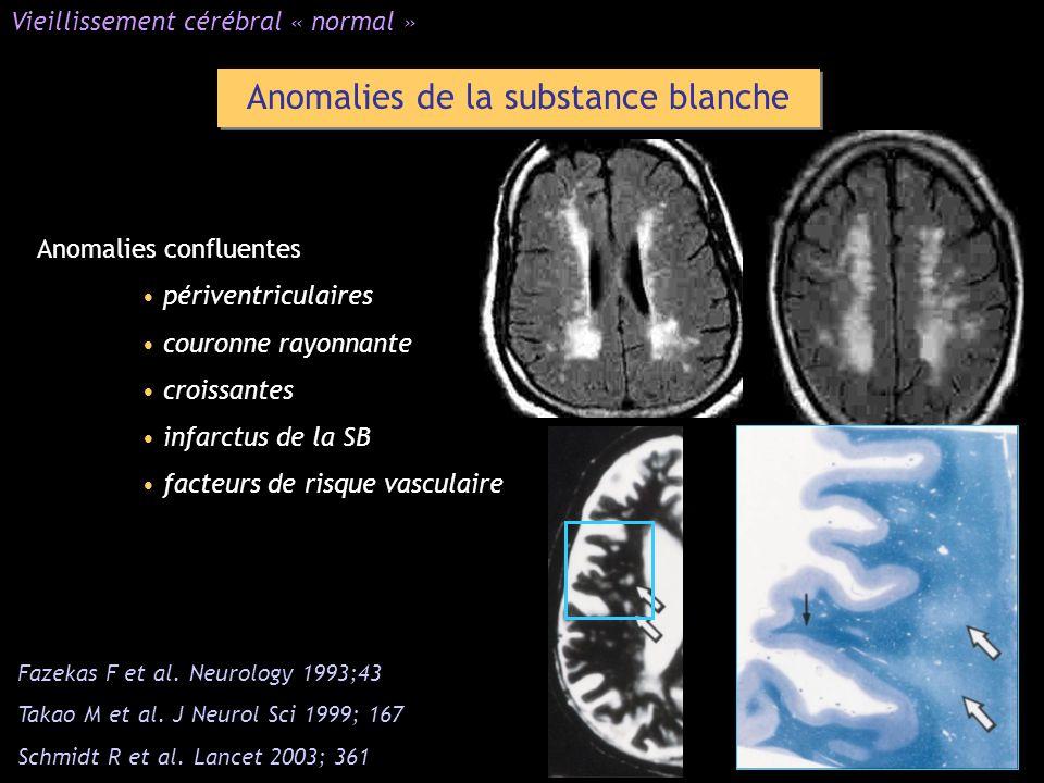 Anomalies de la substance blanche Anomalies confluentes périventriculaires couronne rayonnante croissantes infarctus de la SB facteurs de risque vascu