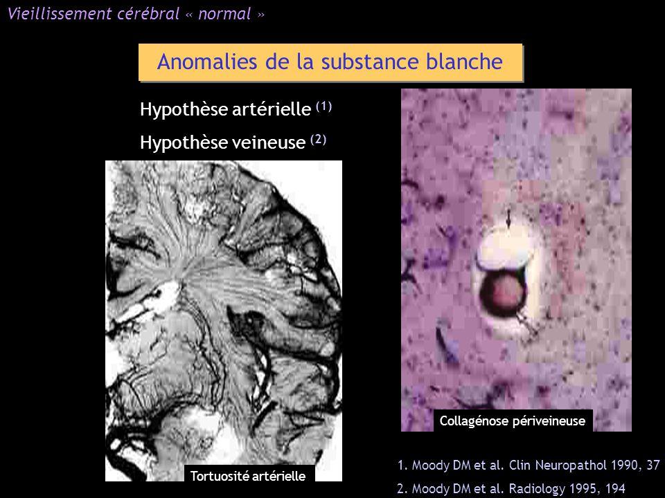 Hypothèse artérielle (1) Hypothèse veineuse (2) Anomalies de la substance blanche Vieillissement cérébral « normal » 1. Moody DM et al. Clin Neuropath