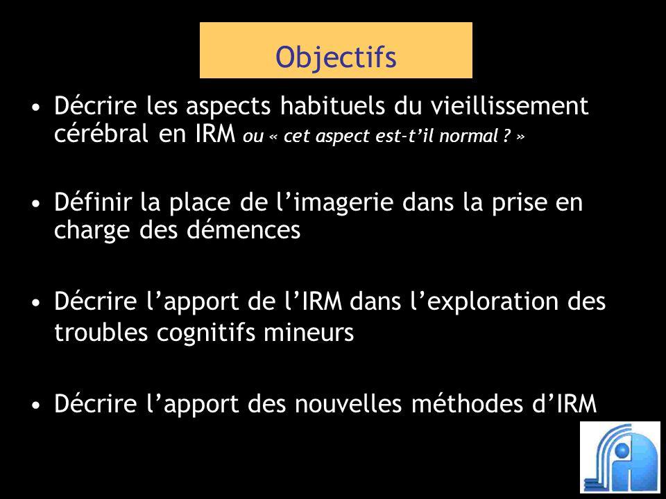 T1 volumique T1 volumique T2 (coupes frontales hippocampes) T2 (coupes frontales hippocampes) FLAIR (coupes axiales) FLAIR (coupes axiales) Diffusion (coupes axiales) Diffusion (coupes axiales) (coupes axiales) T2* (coupes axiales) Atrophie Pathologie de la SB AVC ancien Microsaignements Déclin cognitif : IRM AVC récent