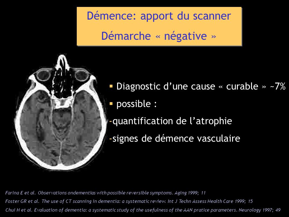Démence: apport du scanner Démarche « négative » Démence: apport du scanner Démarche « négative » Diagnostic dune cause « curable » ~7% possible : -quantification de latrophie -signes de démence vasculaire Farina E et al.