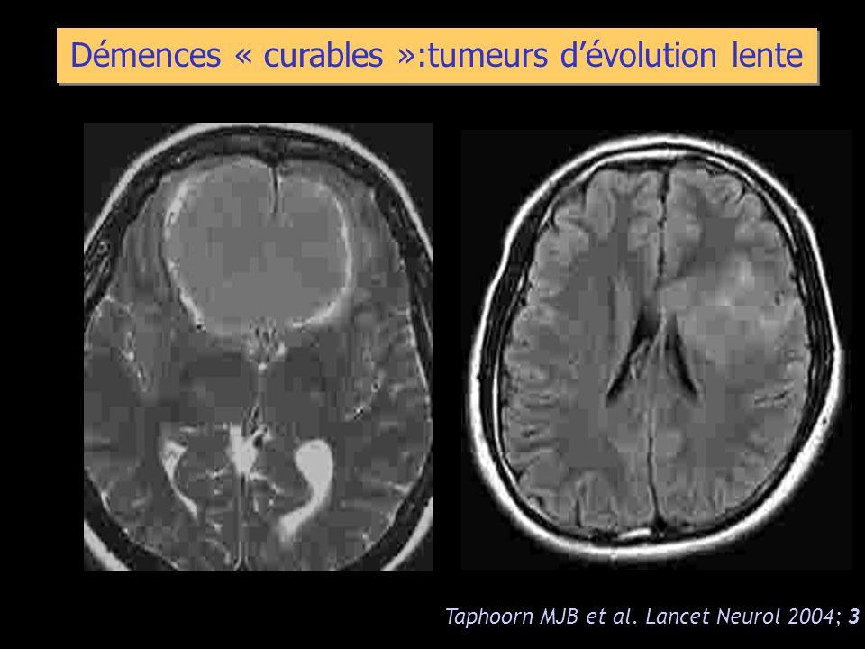 Démences « curables »:tumeurs dévolution lente Taphoorn MJB et al. Lancet Neurol 2004; 3