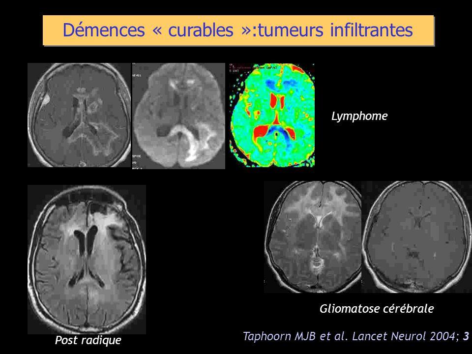 Démences « curables »:tumeurs infiltrantes Taphoorn MJB et al. Lancet Neurol 2004; 3 Lymphome Gliomatose cérébrale Post radique