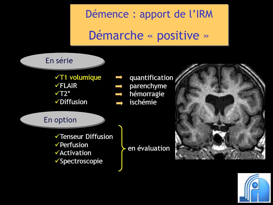 Démence : apport de lIRM Démarche « positive » Démence : apport de lIRM Démarche « positive » T1 volumique FLAIR T2* Diffusion quantification parenchyme hémorragie ischémie En série En option Tenseur Diffusion Perfusion Activation Spectroscopie en évaluation