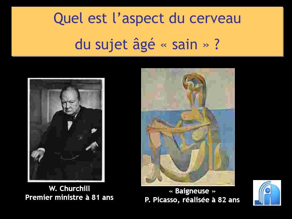 Quel est laspect du cerveau du sujet âgé « sain » ? Quel est laspect du cerveau du sujet âgé « sain » ? W. Churchill Premier ministre à 81 ans « Baign