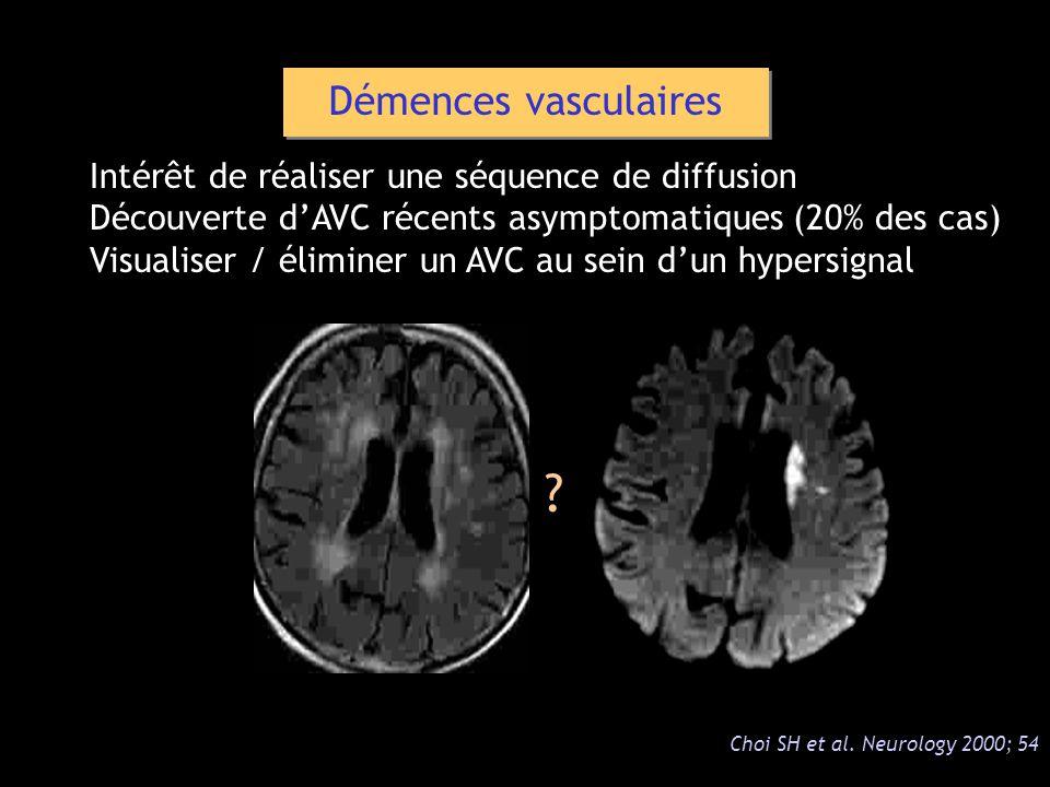 Démences vasculaires Intérêt de réaliser une séquence de diffusion Découverte dAVC récents asymptomatiques (20% des cas) Visualiser / éliminer un AVC