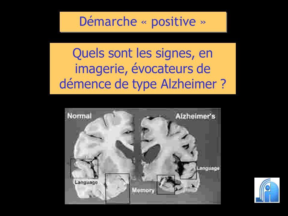 Quels sont les signes, en imagerie, évocateurs de démence de type Alzheimer ? Démarche « positive »