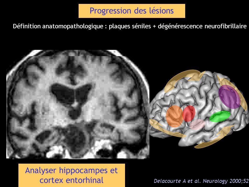 Progression des lésions Delacourte A et al. Neurology 2000;52 1 Définition anatomopathologique : plaques séniles + dégénérescence neurofibrillaire Ana