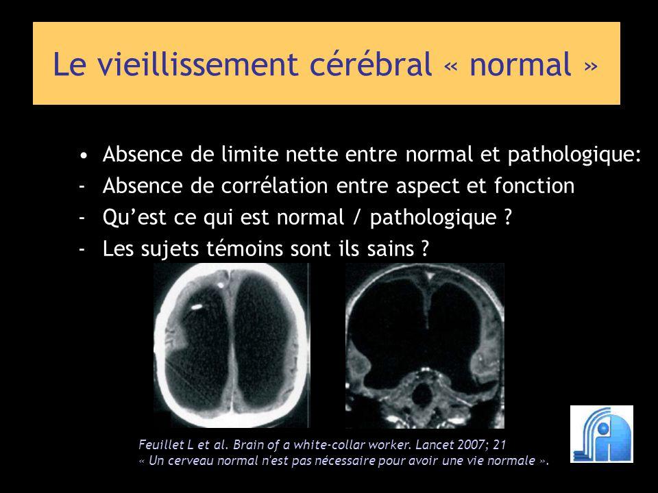 Le vieillissement cérébral « normal » Atrophie cérébrale Dilatation des espaces de Virchow et Robin Modifications de la substance blanche Microsaignements intra parenchymateux Modification de la distribution en fer et de la charge calcique des noyaux gris centraux