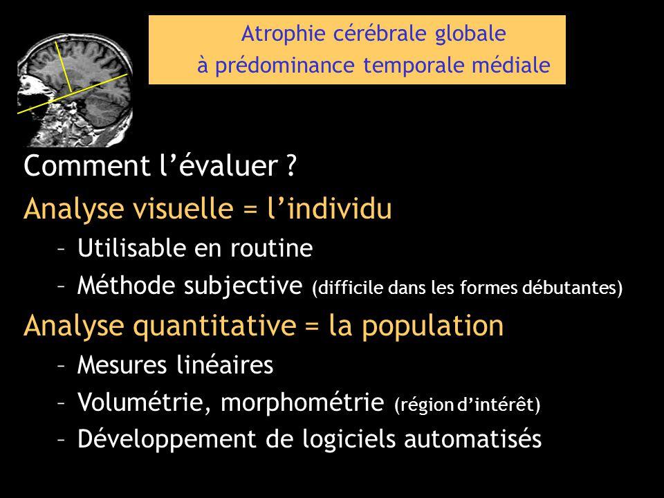 Atrophie cérébrale globale à prédominance temporale médiale Comment lévaluer ? Analyse visuelle = lindividu –Utilisable en routine –Méthode subjective