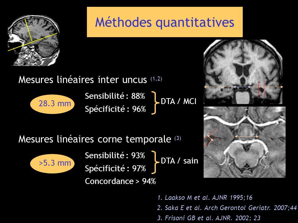 Méthodes quantitatives 1. Laakso M et al. AJNR 1995;16 2. Saka E et al. Arch Gerontol Geriatr. 2007;44 3. Frisoni GB et al. AJNR. 2002; 23 Mesures lin